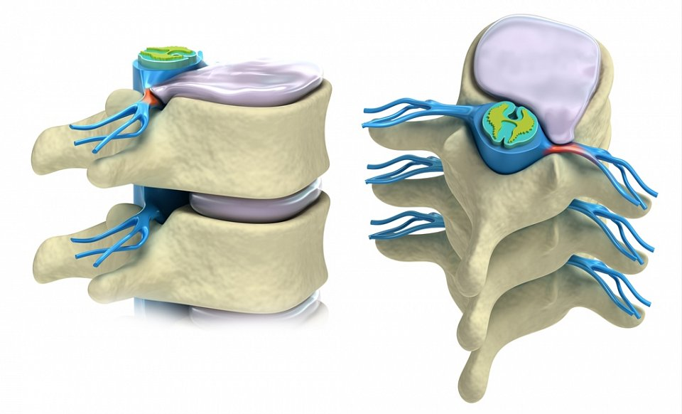 Herniated Disc in Neck