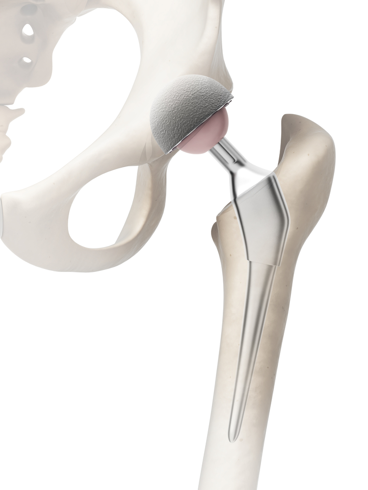 Hip Surgery Exercises For Recovery